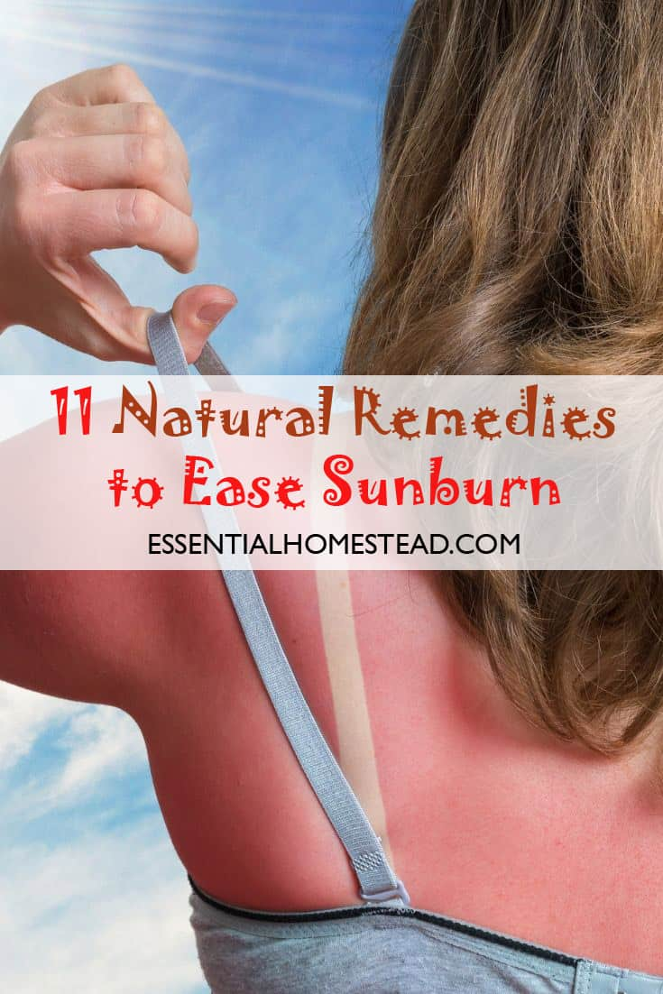 ease sunburn