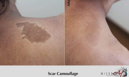 Permanent Makeup for Scars